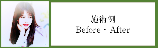 施術例Before・After